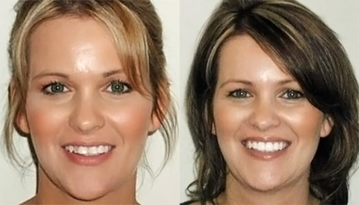 Orthodontic Care - image-2