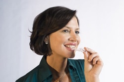 invisalign questions and answers