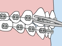 Orthodontic Care - loose-wire