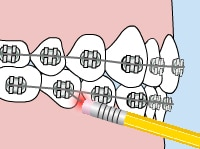 Orthodontic Care - poking-wire