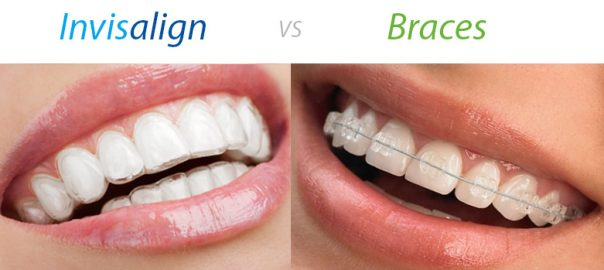 Invisalign vs. Braces: Weighing the Pros and Cons | mysmilect