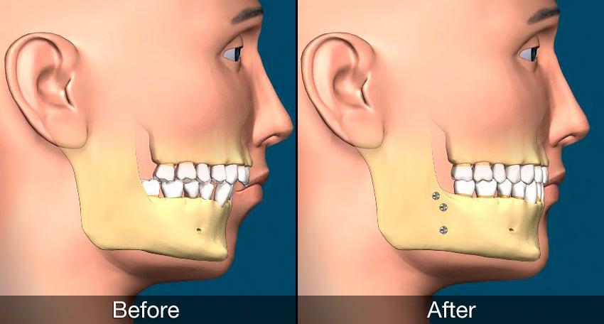 http://www.mysmilect.com/wp-content/uploads/2017/05/corrective-jaw-surgery.jpg