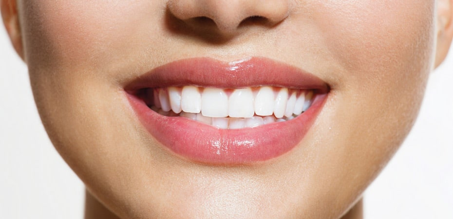 Pros And Cons Of A Permanent Retainer Mysmilect