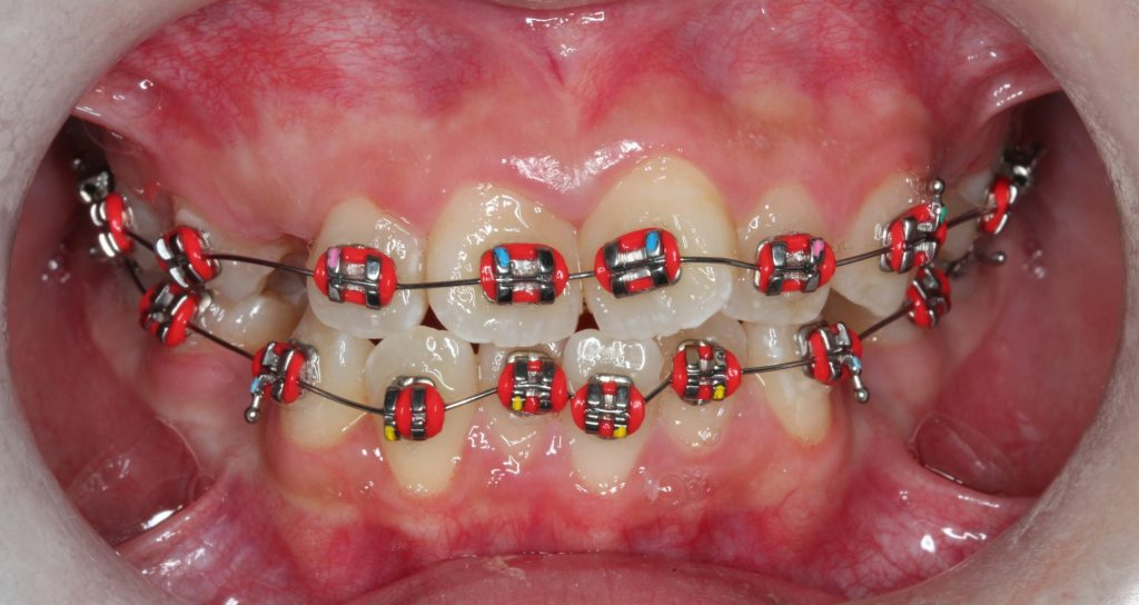Does getting or wearing braces hurt