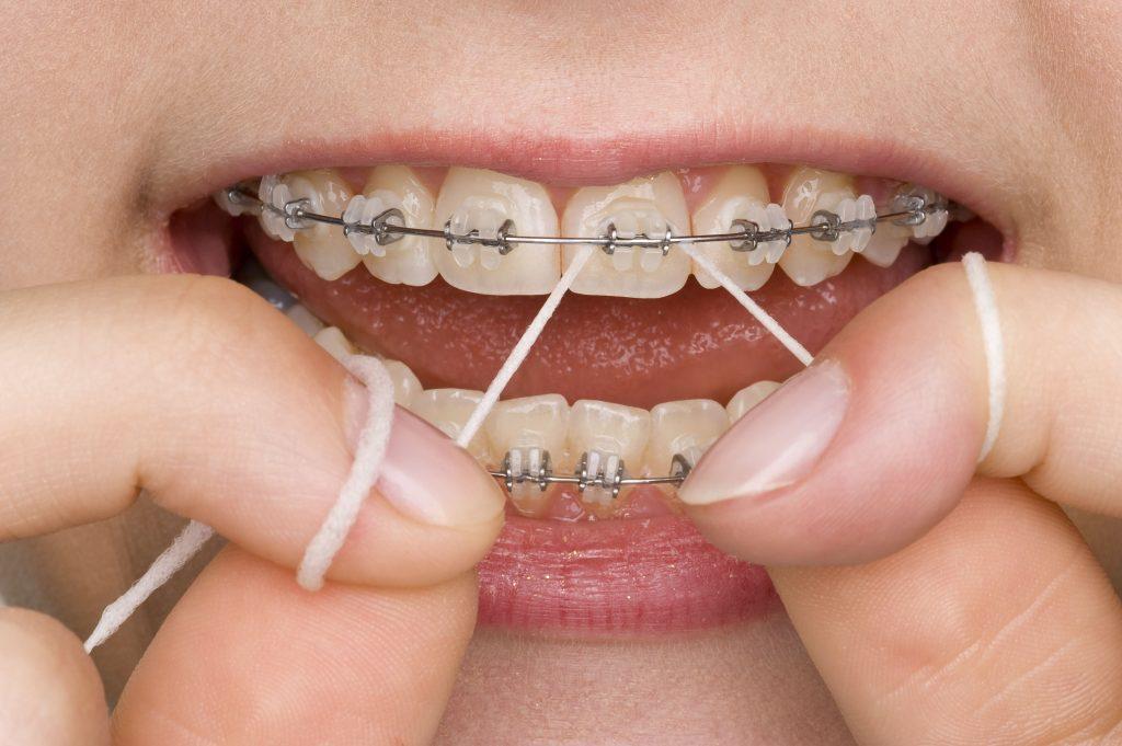How do I floss wearing braces