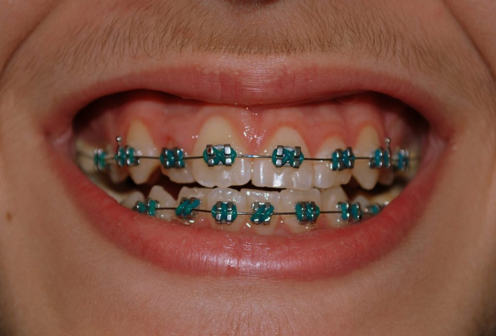 How long will I have to wear braces
