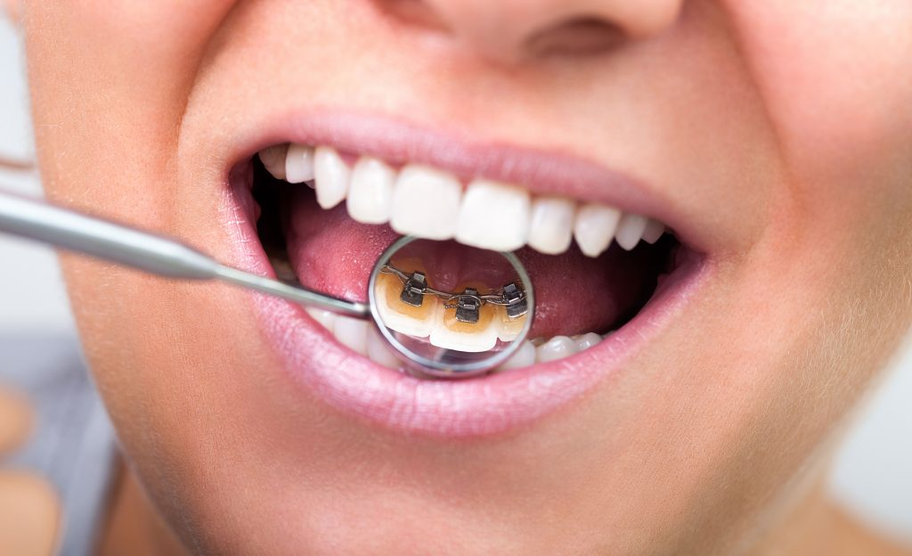 What To Expect When Getting Braces