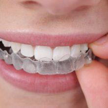 Orthodontic Care - Invisalign-220x220