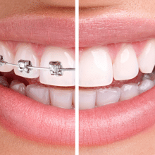Orthodontic Care - Traditional-Braces-vs.-Invisalign-220x220