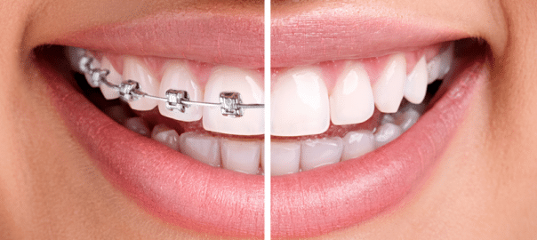 Clear braces vs. Metal Braces: Which is Better