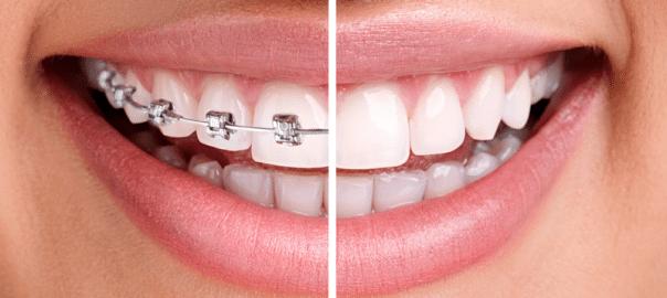 Clear braces vs. Metal Braces: Which is Better