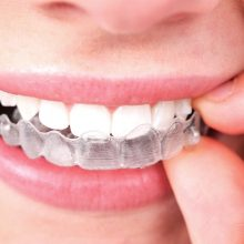 Orthodontic Care - Invisalign-220x220