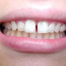 Orthodontic Care - January-3-220x220