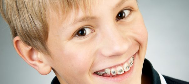 early orthodontic treatment benefits