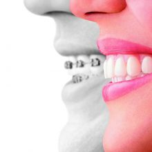 Orthodontic Care - braces-vs-invisalign-aligners-ad-invstraighttalk-220x220