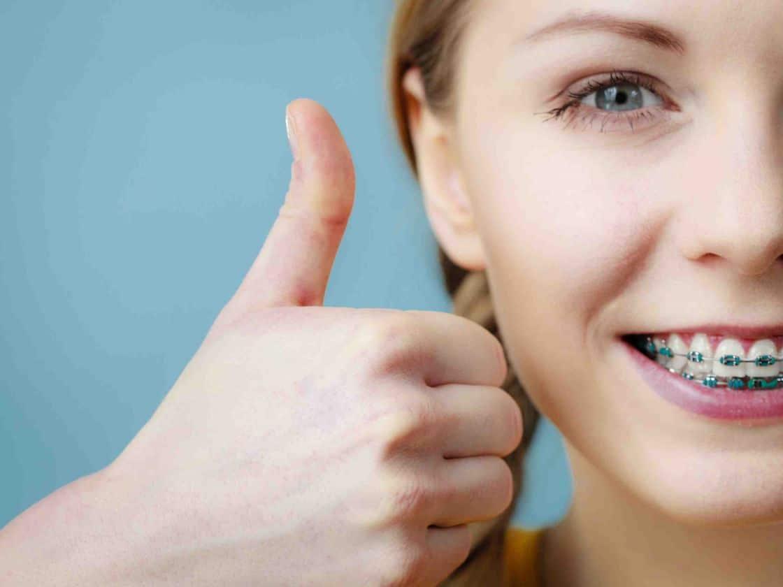 benefits of braces