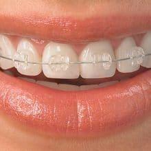 Orthodontic Care - September-Blog-1-220x220