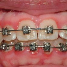 gum inflammation with braces