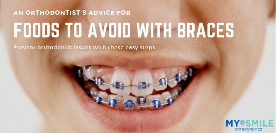 Foods To Avoid With Braces Things To Know Before You Buy