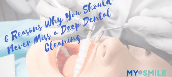 6 Reasons Why You Should Never Miss a Deep Dental Cleaning